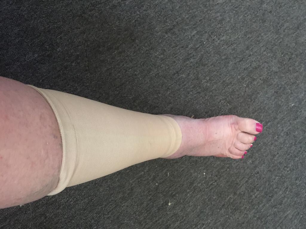 Instrucțiuni pentru varicose gels foot